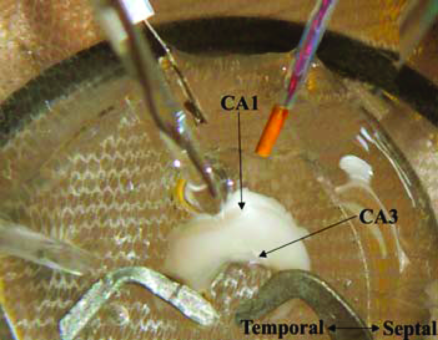Picture of the isolated hippocampus in vitro with a field electrode